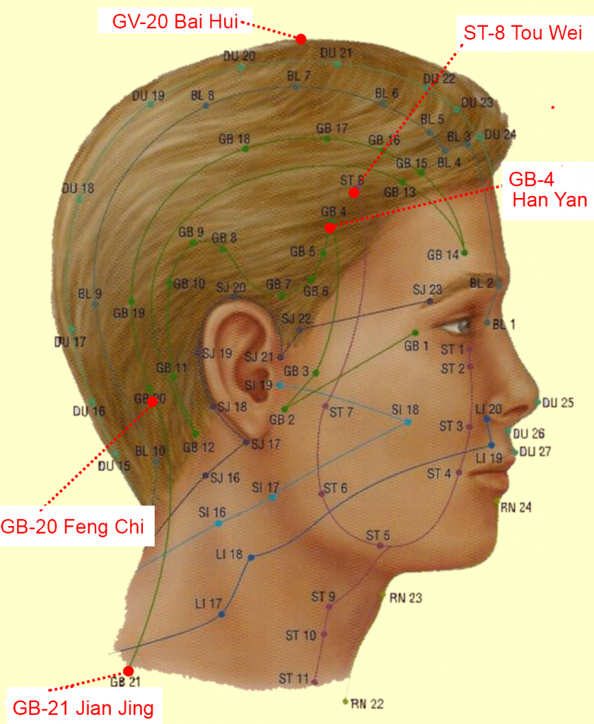 RUB OUT MIGRAINE HEADACHES WITH 5 CHINESE ACUPRESSURE POINTS, MIGRAVENT