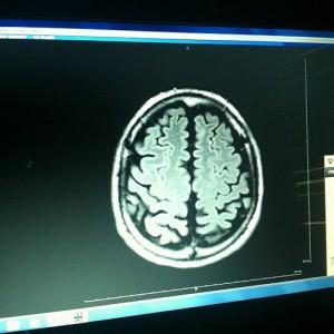 The Migraine Aura Brain: New Revelations